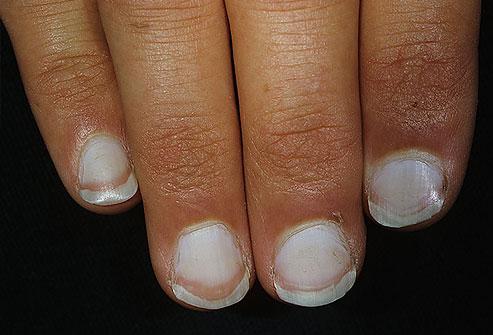 inflamația țesutului conjunctiv al unghiei)