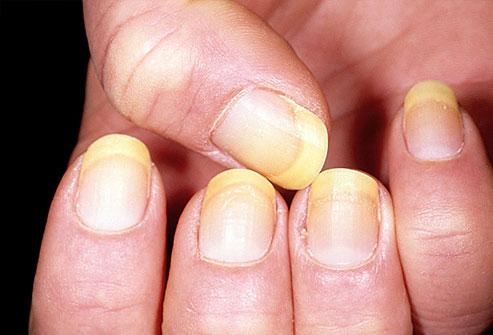 inflamația țesutului conjunctiv al unghiei