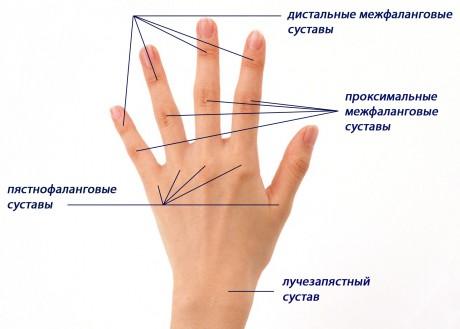 Ревматоидный артрит межфалангового сустава thumbnail